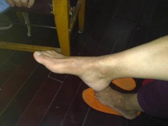 为什么老年人经常出现脚肿?总结:有2种原因,做好几点帮你远离
