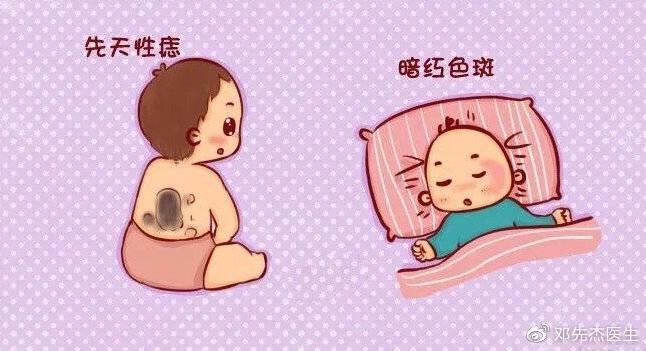 【孕妈须知】宝宝为什么会有胎记?孕期如何避免?