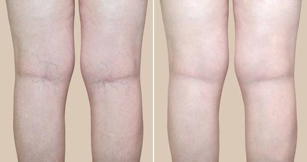 XO型腿、O型腿如何矫正,坚持这5个动作,终见成效