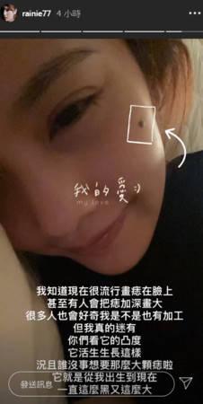 杨丞琳右脸黑痣被怀疑加工过 凌晨晒近拍照这样解释