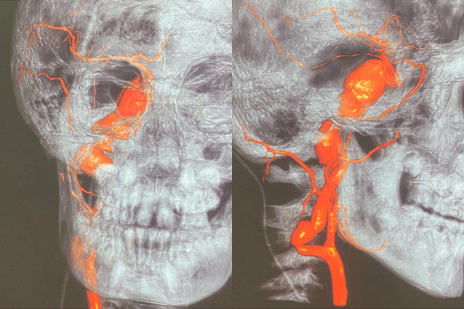 脑动脉瘤一般能活几年