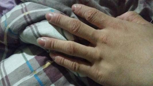 为什么手指长时间泡水会变皱?如果不发皱是不是更健康?别做错