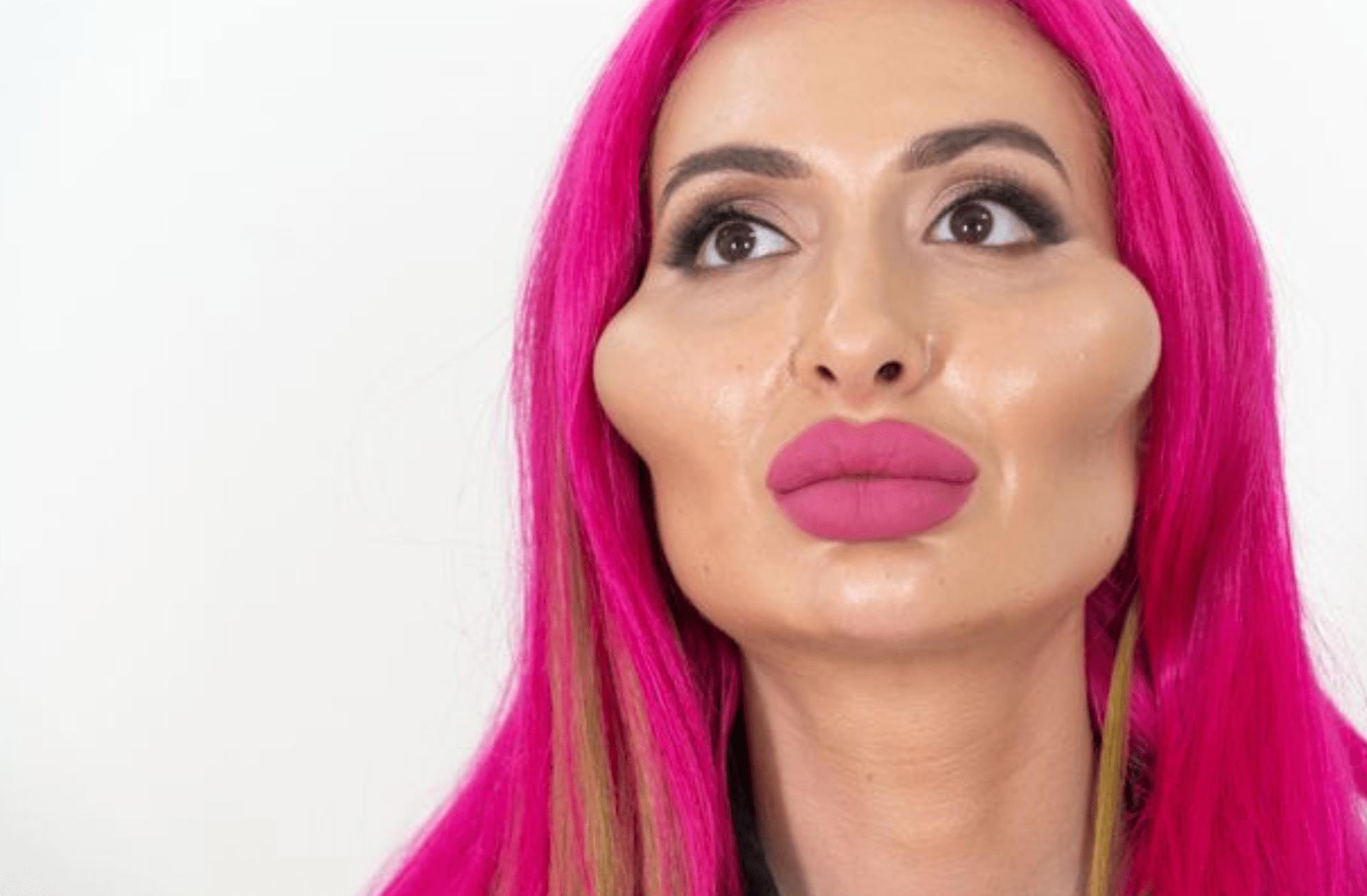 网红模特自称拥有世界最大脸颊 颧骨高到两侧有不自然隆起