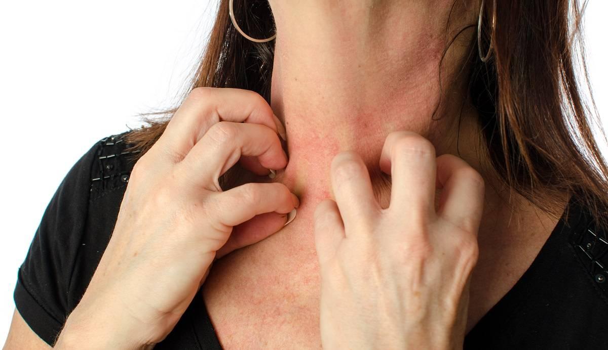 手臂皮炎湿疹症状图片