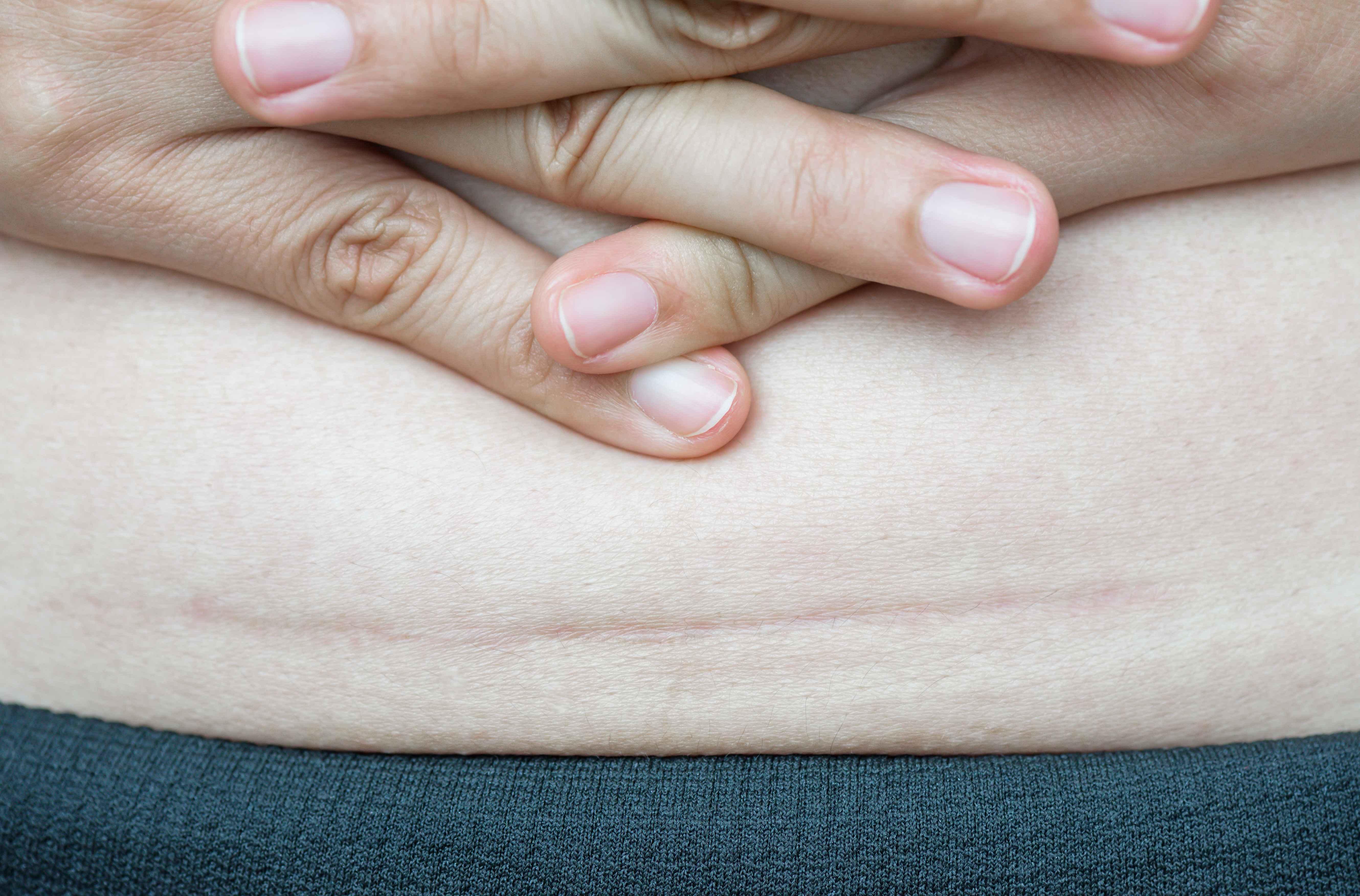 """人一胖,百病来?超一半的中国人,小心被这12种癌症给""""盯上"""""""