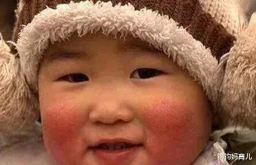 为什么夏天白白嫩嫩的宝宝,到了冬天就变丑了?  第2张