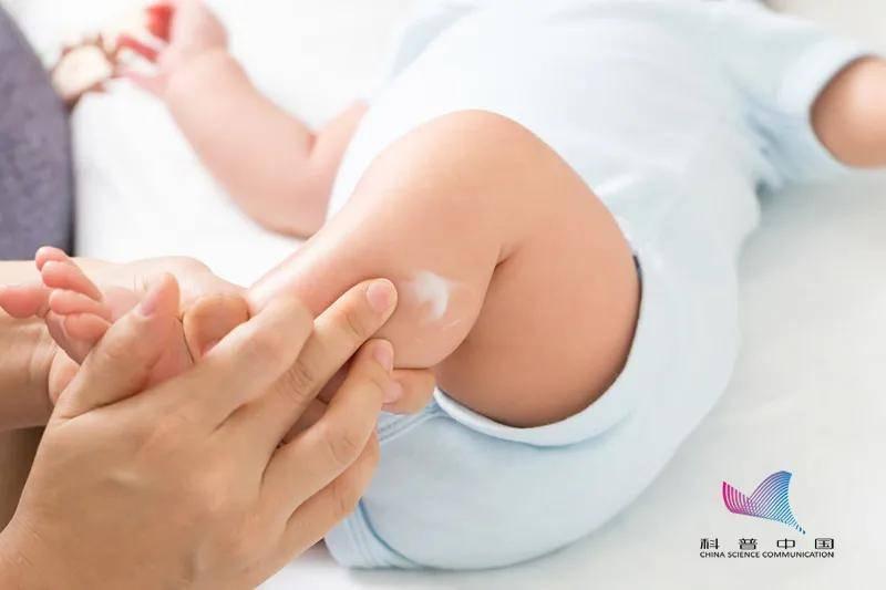 """冲上热搜!婴儿使用抑菌霜后成""""大头娃娃""""?这些事你一定要知道"""