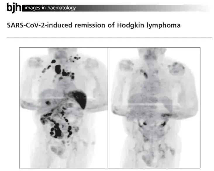 真的是以毒攻毒?癌症晚期患者染新冠4个月后,肿瘤竟然消失了!