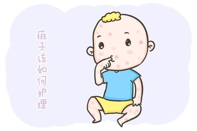 宝宝身上起了痱子,但又不能用痱子粉,那该怎么做?