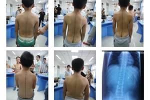 陶勇受伤近8月左手未恢复触觉