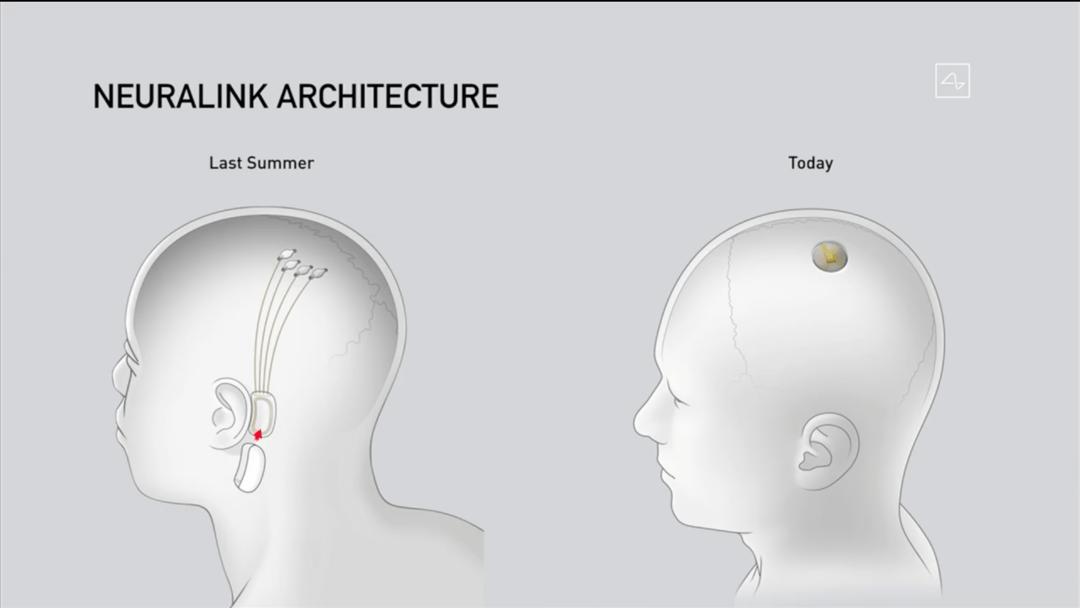 马斯克|马斯克直播用猪展示脑机接口