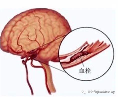 血管油太多,清血管吃什么食物好呢?