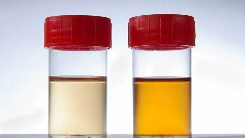 慢性肾功能不全病人要高度重视高磷血症的防治