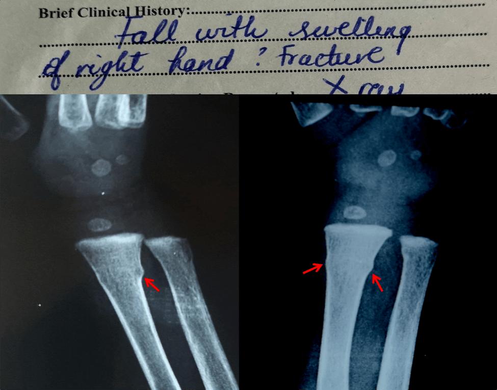 援非日记   第332天,反复让Sherrif看容易漏诊的骨折X光片