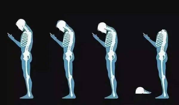 @山西人,低头玩手机、睡姿不正确、缺乏锻炼...小心患上颈椎病!  第3张