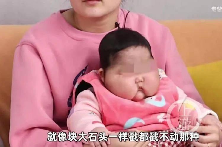 """婴儿用面霜后变""""大头娃娃""""?官方通报:下架!调查!  第2张"""