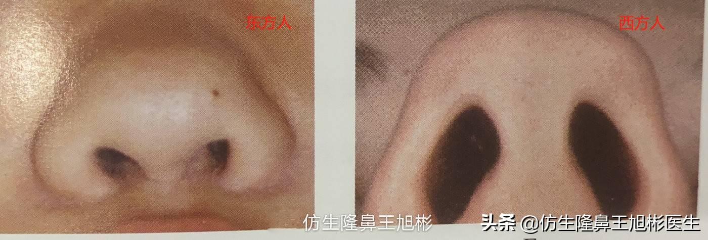 鼻头变小多少钱(缩小鼻子手术安全吗)插图(4)