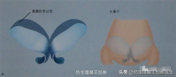 鼻头变小多少钱(缩小鼻子手术安全吗)插图(1)