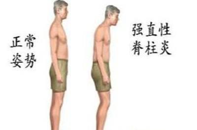 强直性脊柱炎后期会怎么样(强直性脊柱炎影响生命吗)