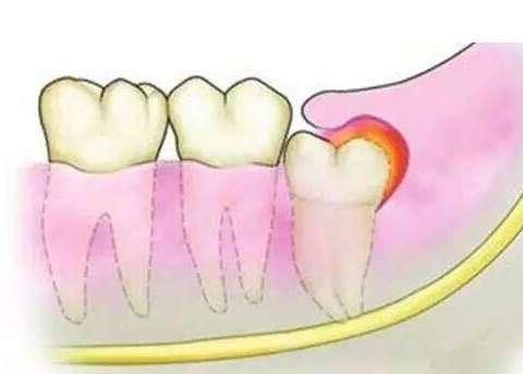 为什么拔完智齿后,旁边的牙会痛?
