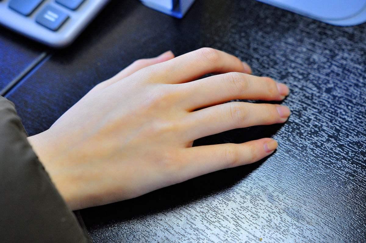 女人左手手背长痣图解