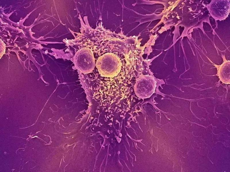 癌症从早期到晚期,通常会经历多长时间?真的有那么快吗