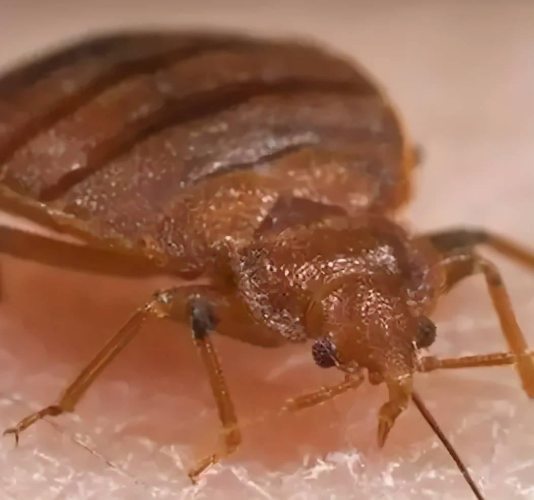 """宝宝身上有""""红包"""" 就是被蚊子咬的?这种虫子更要小心-家庭网"""