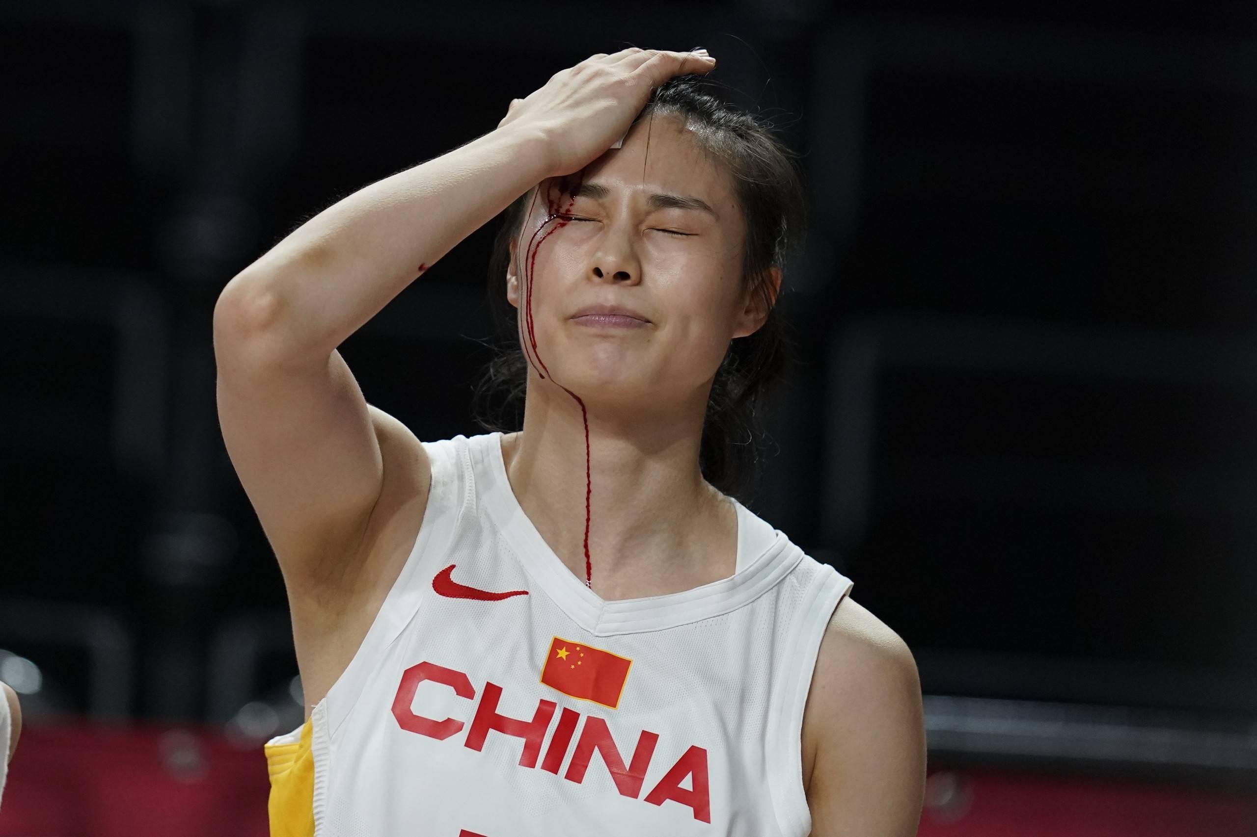 中国女篮战胜强敌澳大利亚 姑娘们血染赛场还在拼_英皇娱乐注册