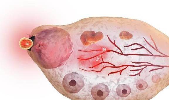 """月经走后几天,是""""排卵期""""?或许身体的这3个""""感觉""""更准!"""