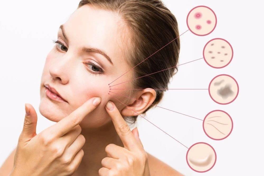拒绝滥用护肤品,实现科学肤质的自我管理