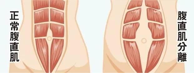 产后妈妈的大肚腩究竟是怎么一回事?