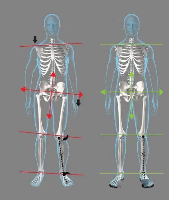 练瑜伽,稳定骨盆很重要!6个简单的动作稳定骨盆,一定要常练!