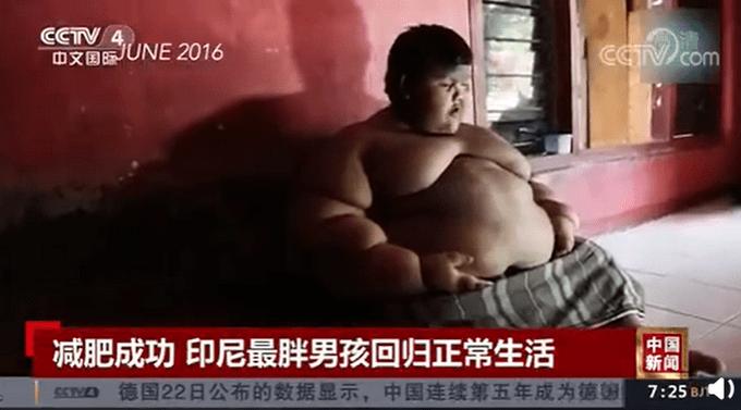 世界最胖男孩减重200斤,前后变化有多大?网友:太不容易了!