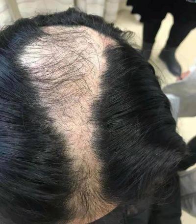 """""""10后""""也秃了?台州两个小学生不断脱发,查了半天,真相让人哭笑不得"""