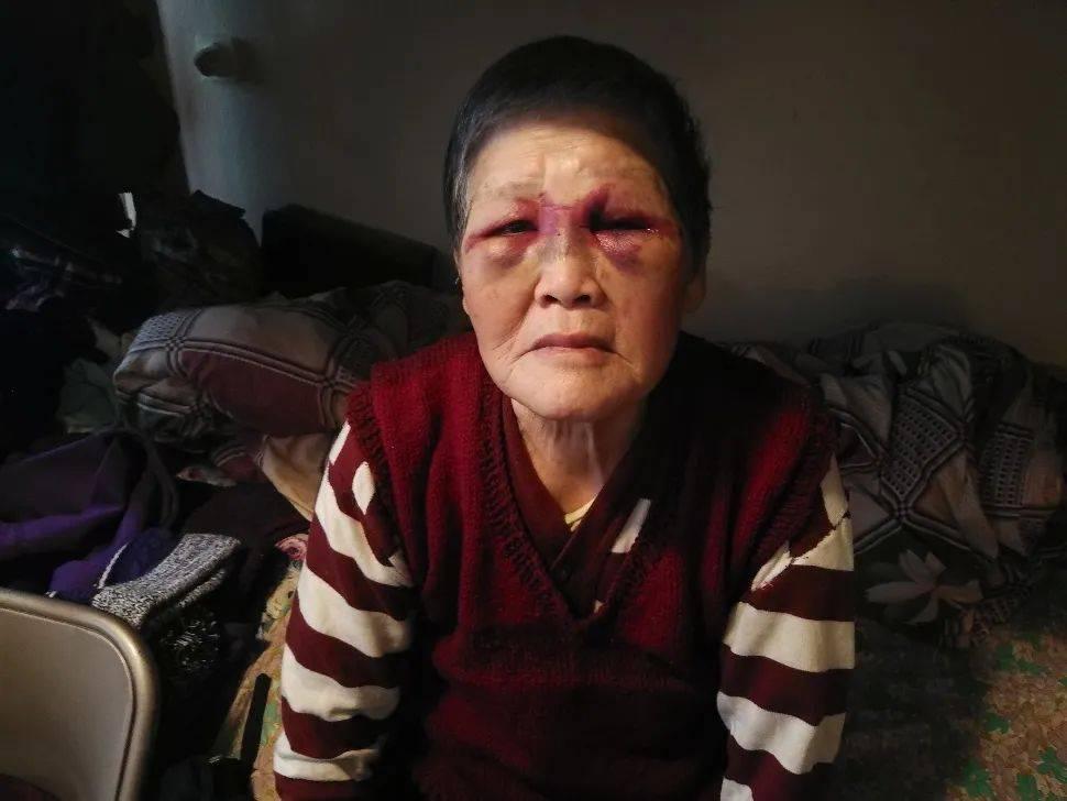 中国人老太为什么要敢还击白种人壮男?或和她这一段历经相关