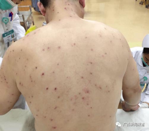 可怕!南宁一游客在青秀山被蜜蜂蜇了100多下!半小时才拔光毒刺...