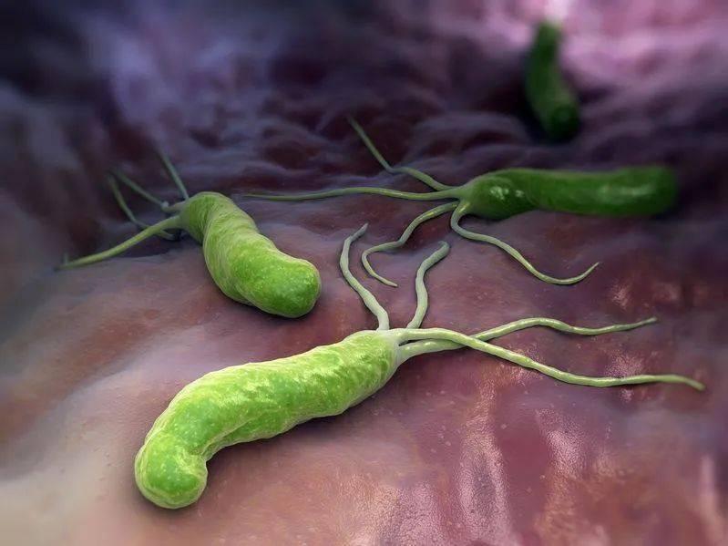 感染了幽门螺杆菌,会得胃癌?听听医生怎么说